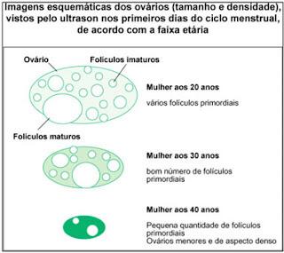 Exame de ultrassonografia   Mater Prime