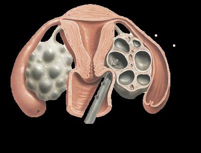 Captação ovariana | Tratamentos | Fertilização in vitro | Mater Prime