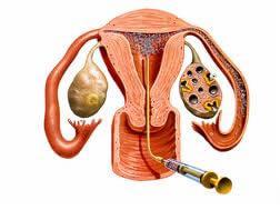 Descubra quais as condições para realizar a inseminação artificial | Mater Prime
