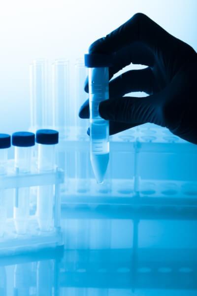 lavagem de espermatozoides em reprodução humana