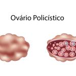 Como a Síndrome dos Ovários Policísticos afeta a fertilidade feminina?